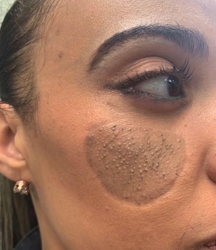 mujer vellos pubicos cara injerto 2 - A esta mujer le empezaron a salir vellos púbicos en la cara tras un injerto. Usaron piel de su ingle