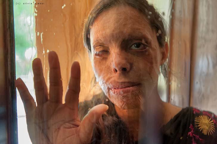 """silviaalessi skinproject012 - 14 fotografías de """"Skin Project"""": Una serie de retratos de albinos y mujeres quemadas con ácido"""