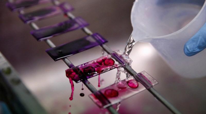 Nuevo análisis de sangre puede predecir si se morirá en los próximos 10 años, con una precisión de más del 80 %