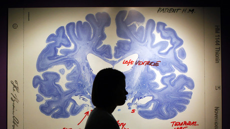 5c02192cfc7e93b0238b4588 Not what you had in mind? Brain implant could help with depression, study says