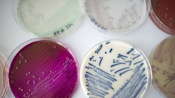 Evidence for the origin of the deadly fungi that has raged in hospitals around the world a decade ago discovered