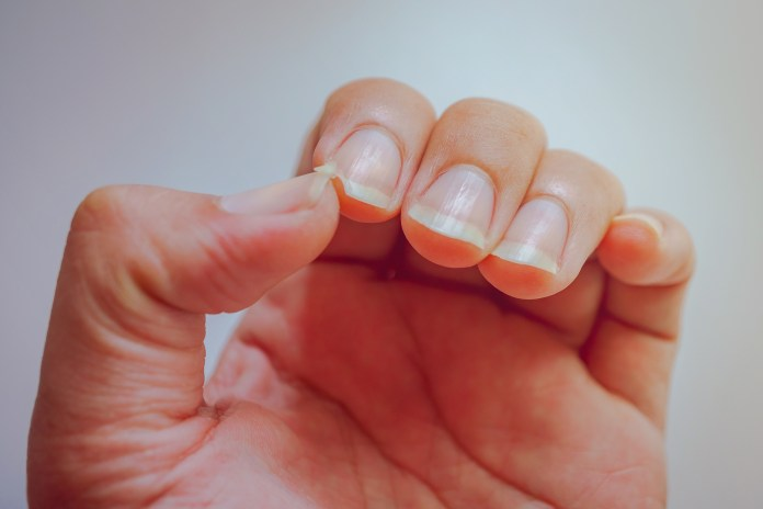 Nail changes represent
