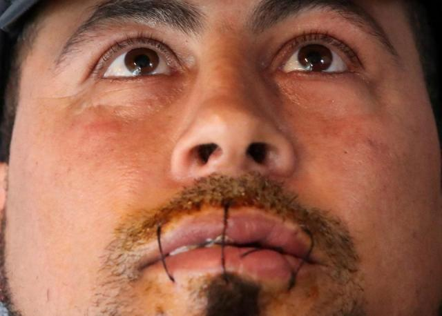 Hasni Abderrazzek, 44, is seen with his lips sewed together in a room on the campus of Belgium university ULB in Brussels, Belgium June 29, 2021.