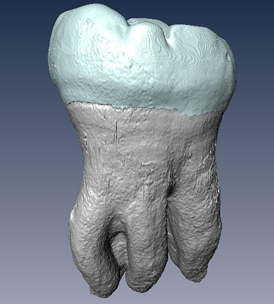 El molar inferior de tres raíces
