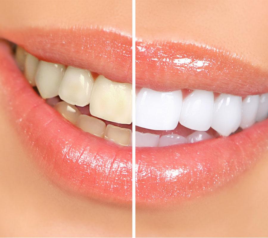 odontologia-villa-madero-la-matanza-blanqueamiento-dental-000