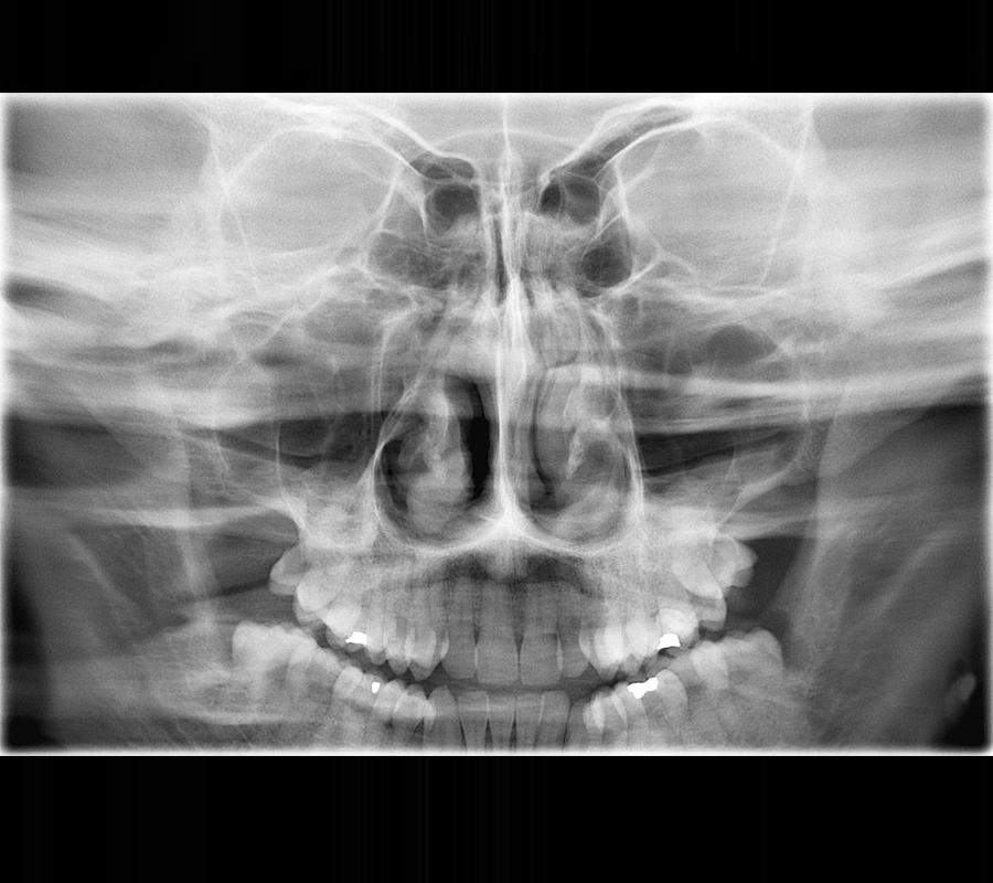 radiologia-villa-madero-senosparanasales