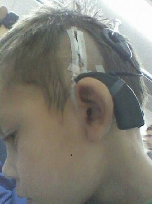 nene-audifono