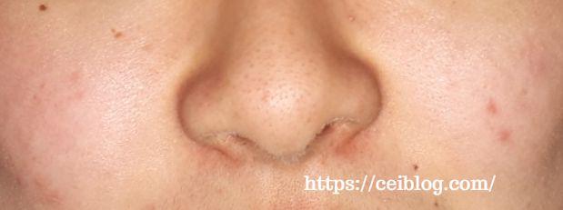 ナノアNANOA酵素洗顔パウダー 口コミ レビュー効果と使い方