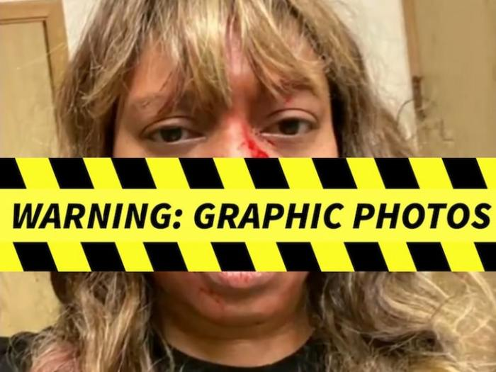Alleah Taylor Injuries — Graphic Photos