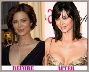 Catherine Bell Breast Implants