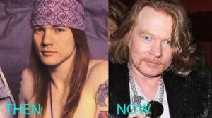 Guns and Rose Axl Rose Before and After Surgery