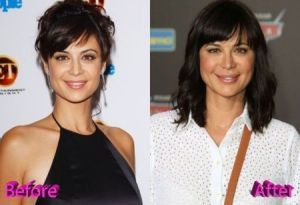 catherine Bell Facelift & botox