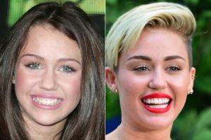 Miley Cyrus Teeth Vaneer