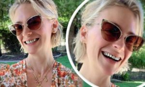 Comparison of January Jones Teeth 'Before' and 'After'