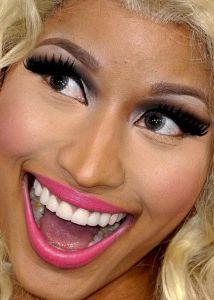 Are Nicki Minaj teeth real?
