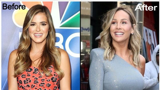 Bachelorette JoJo Fletcher Plastic Surgery - Before and After Facelift