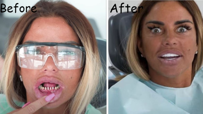 Katie Price Teeth – Before & After Veneers