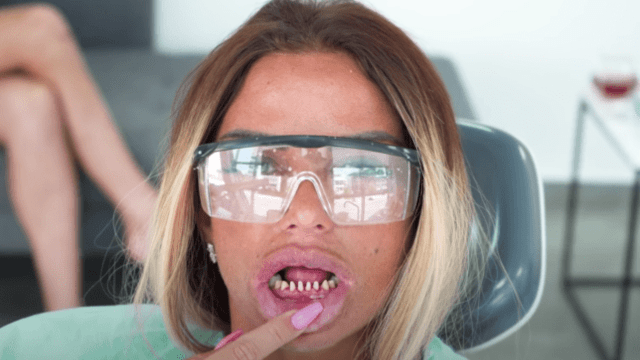 Katie Price Without Teeth Vanners