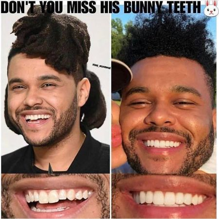 The Weeknd Teeth Before and After