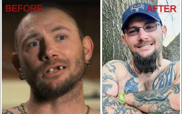John Finley New Teeth are Dentures