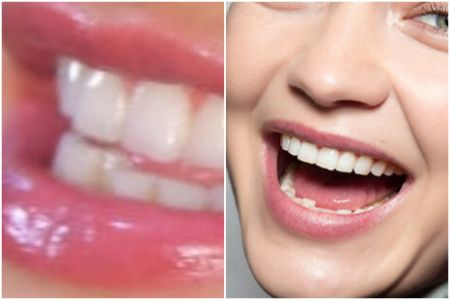 Gigi Hadid Teeth
