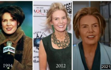 Leslie-Visser-plastic-surgery-before-after