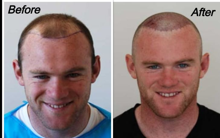 Wayne Rooney Hair Transplant – Before and After