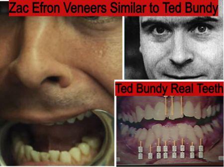 Zac Efron fake teeth veneers