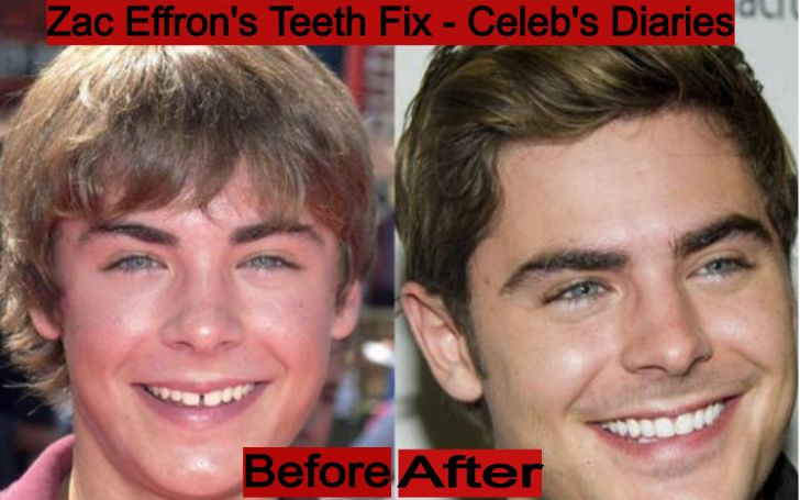 Does Zac Efron Have Fake Teeth? Veneers, Teeth Gap & Plastic Surgery