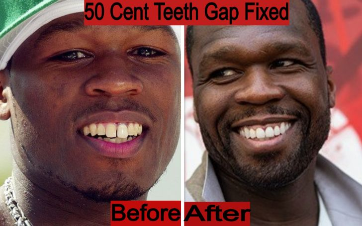 50 Cent Teeth Old Teeth Gap – Before & After Comparison