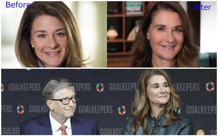 Melinda Gates Plastic Surgery