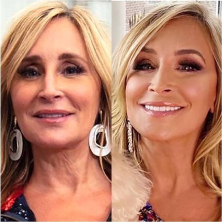 Sonja Morgan plastic surgery Before and After comparison