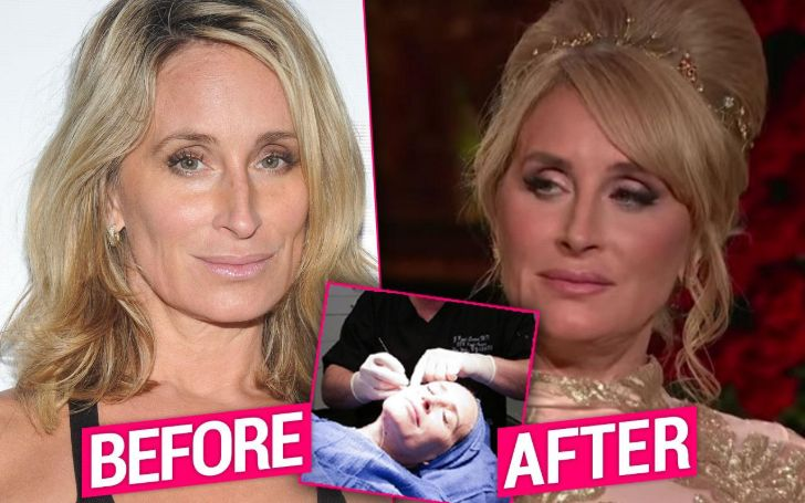 Sonja Morgan Plastic Surgery
