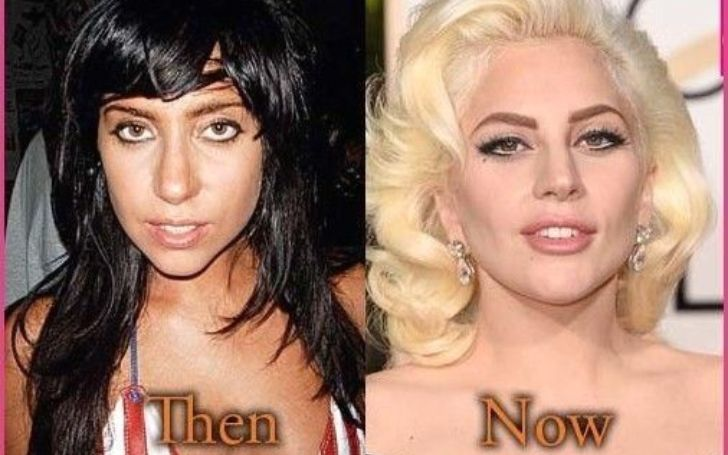 Truth about Lady Gaga Plastic Surgery; What Procedures Had She Gone Through?