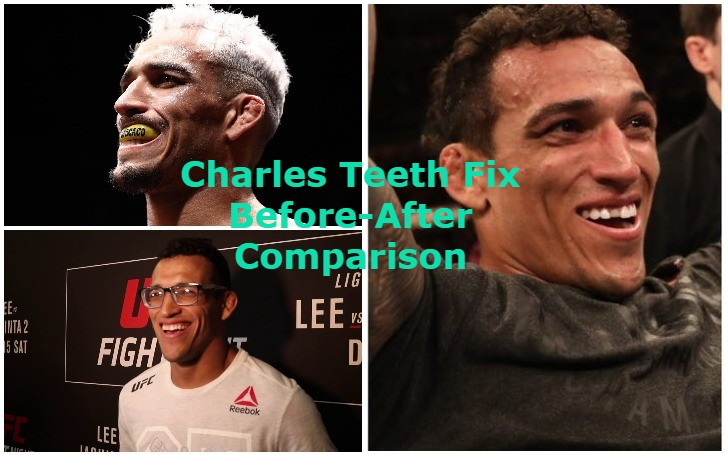 Charles Oliveira Teeth Fix! Before-After Comparison