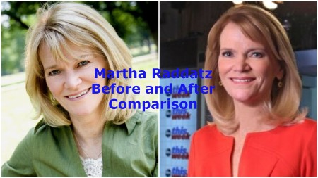 Martha Raddatz Before and After