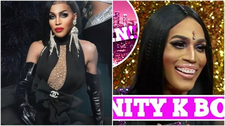 Trinity K. Bonet Teeth Before and After