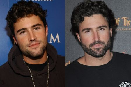 Brody Jenner Before and After