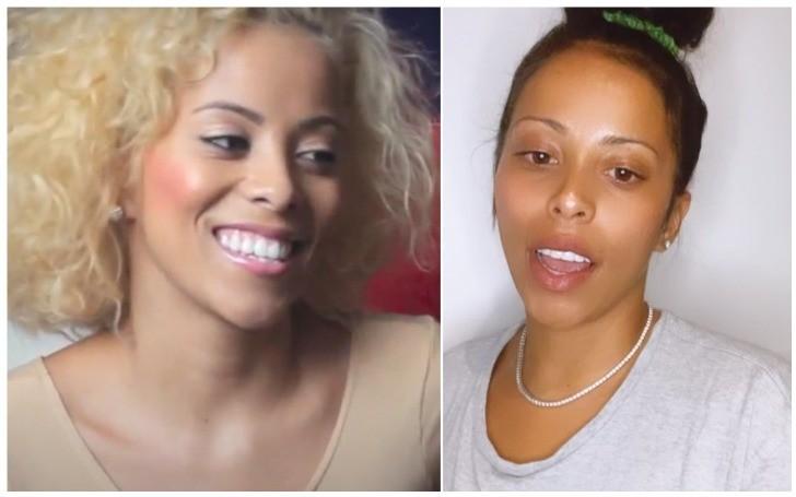 'Love and Hip Hop' Host Kaylin Garcia Got her Teeth Fixed!!!
