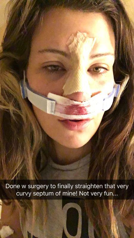Miesha Tate Nose Surgery (1)