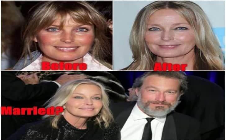 Facts about 'Tarzan, the Ape Man' actress Bo Derek Plastic Surgery and Future Husband!!!