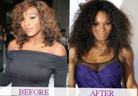 Serena Williams Breast Augmentation plastic surgery