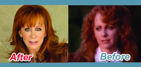 Before and After Snippet of Reba McEntire plastic surgery