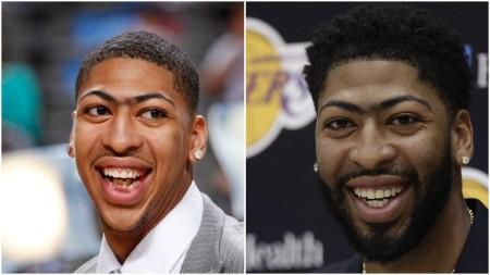 Anthony Davis teeth before and after