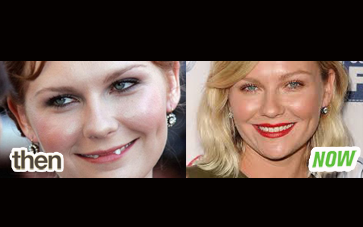 'Spider-Man' actress, Kirsten Dunst Teeth Facts! Also, Learn Her Net Worth & Movies!