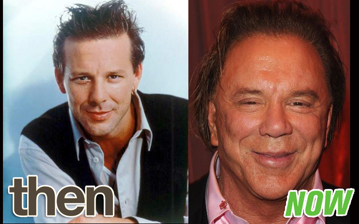 Mickey Rourke Plastic Surgery includes Rhinoplasty, Botox, and Facelift