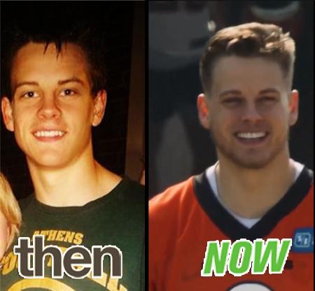 JoE Burrow Teeth Before and After
