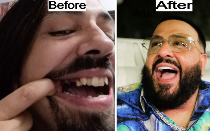 DJ Khaled New Teeth – What Happened to Old Teeth? Also about his Wife and Child