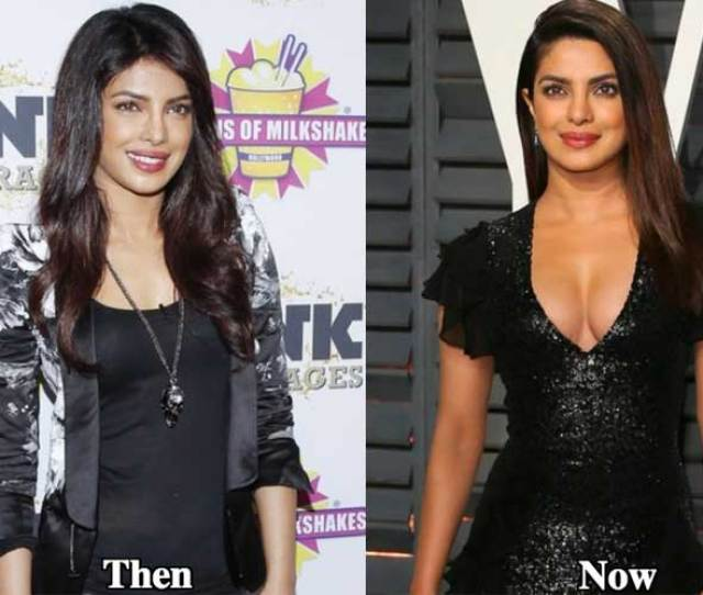 Boob Job Priyanka Chopra Plastic Surgery