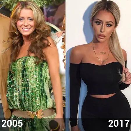 Aubrey O'Day full body plastic surgery comparison.